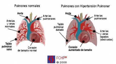 Hipertension.pulmonar.jpg